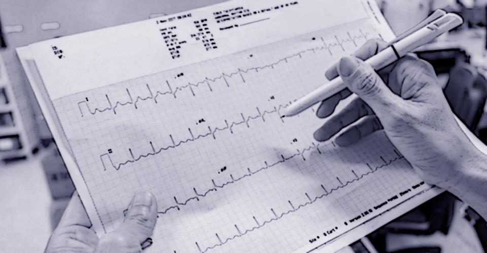 Un esperto valuta il tabulato di un elettrocardiogramma