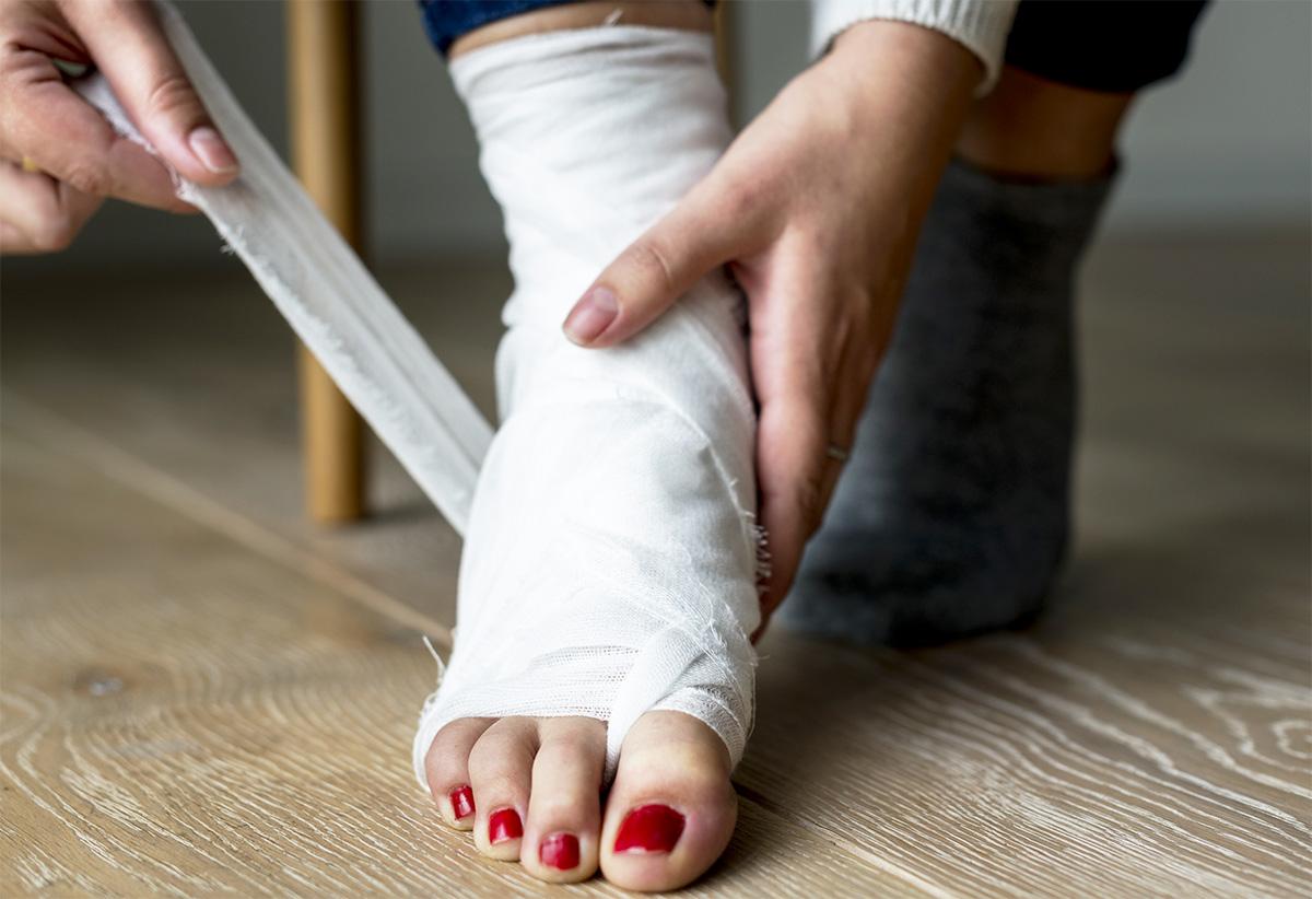 Immobilizzazione della caviglia per distorsione