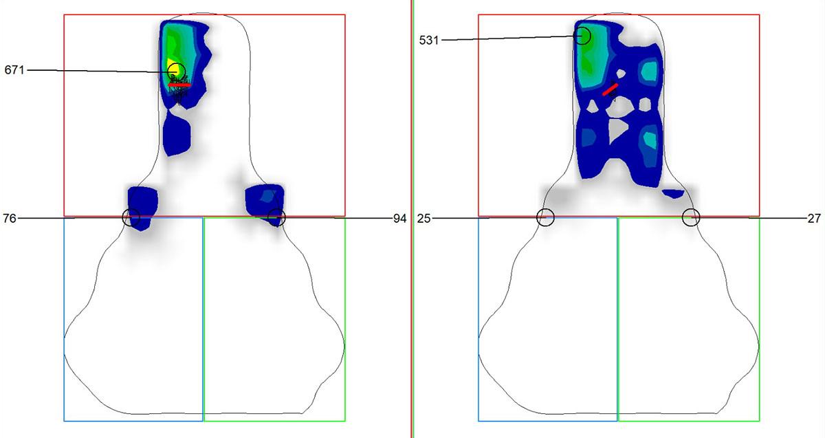 Analisi delle pressioni dinamiche su due differenti selle da triathlon pedalando su una bici da crono