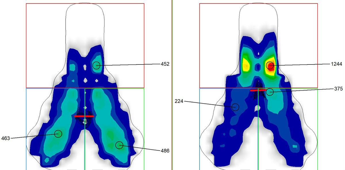 Analisi al PC dei risultati dei sensori di pressione sulla sella: a sinistra posizione normale, a destra con prolunghe da crono.