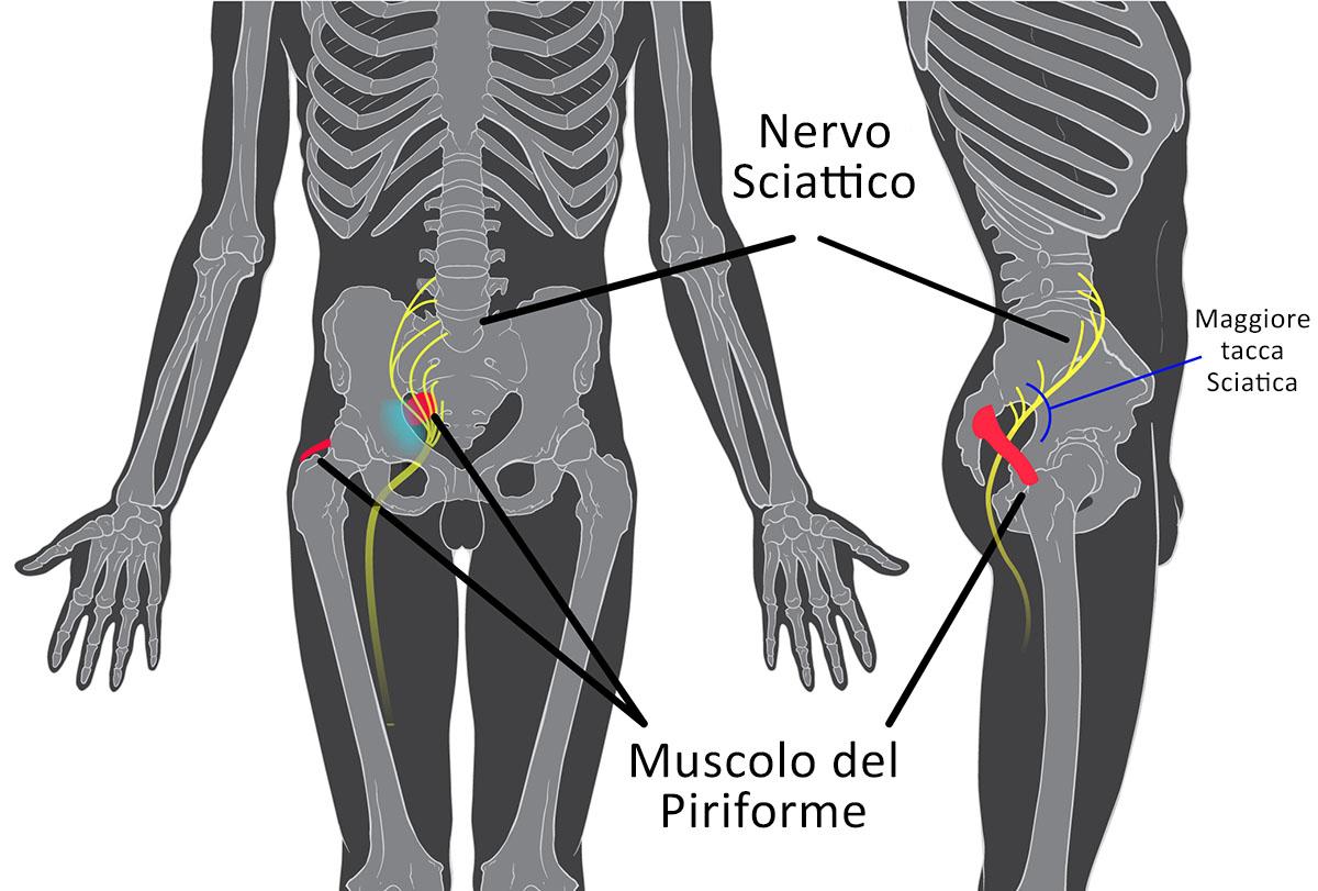 Il Nervo Sciattico e sindrome del Piriforme