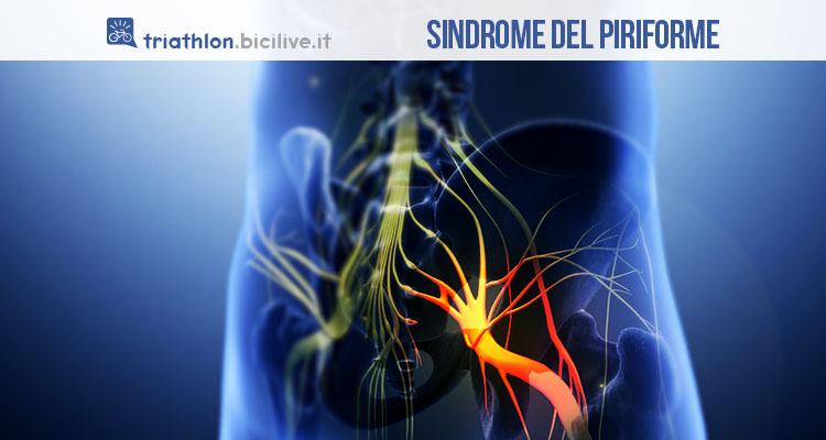 Sindrome del piriforme, cos'è e come si cura