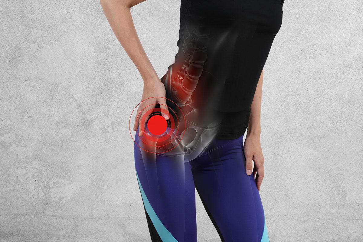 La Donna che tocca il lato dolorante con sindrome del Piriforme